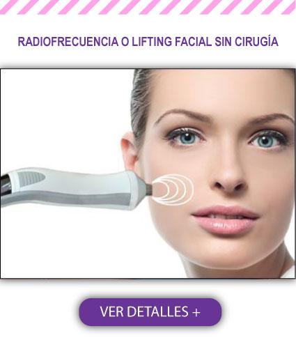 Radiofrecuencia o Lifting Facial sin Cirugía