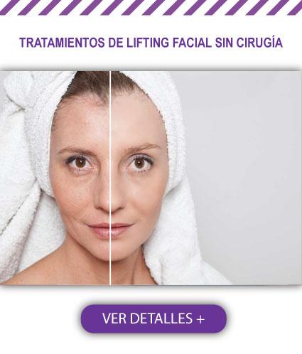 Tratamientos de Lifting Facial sin Cirugía