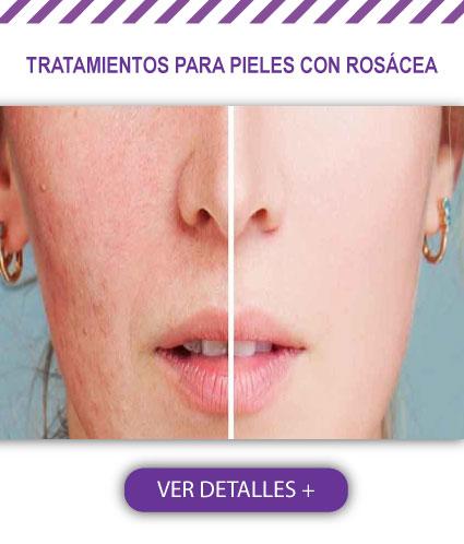 Tratamiento para pieles con rosáceas